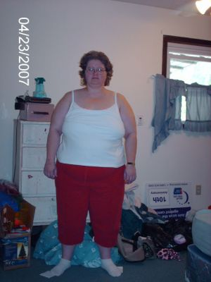 Me before Gastric Bypass